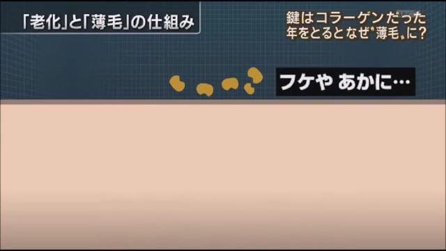 薄毛原因はコラーゲン(報ステ).mp4_000092890