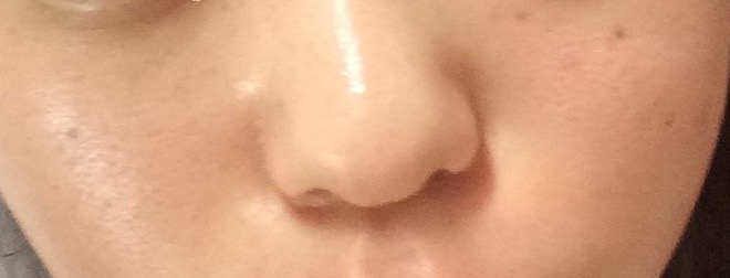毛穴の黒ずみが洗顔にて改善される後