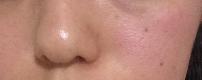 毛穴の黒ずみが洗顔にて改善される前