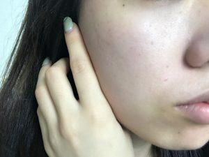 飲む日焼け止め使用後の顔アップ