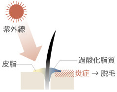 頭皮紫外線対策にて紫外線の頭皮に対する影響